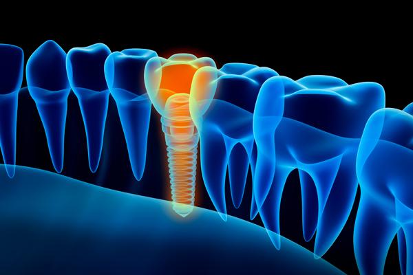 Implantologia - Impianti endossei