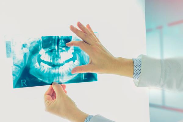 Radiografie endorali e panoramiche digitali